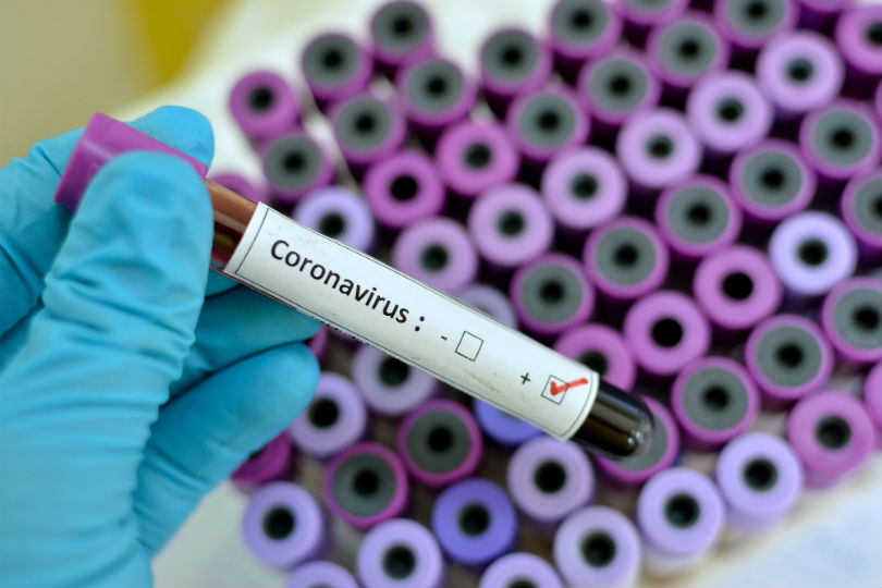 'Industry should lobby for new 'coronavirus clear' certificates'